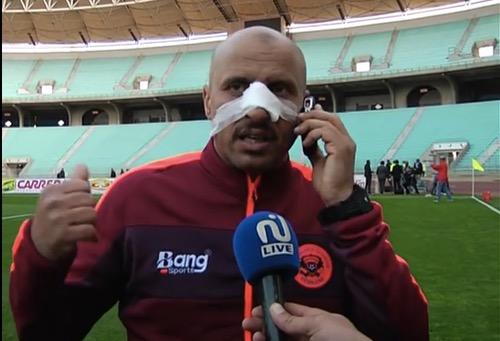 """""""التوانسة"""" يُكَسرون أنف مُدرب نهضة بركان ويَعتدون على اللاعبين بين شوطي مباراة الإفريقي"""